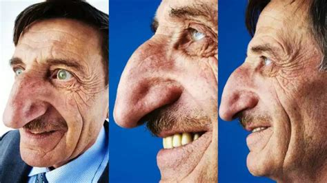 Meet the Turkish man with the longest nose in the world